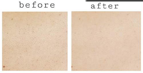 広尾プライム皮膚科体験レポート
